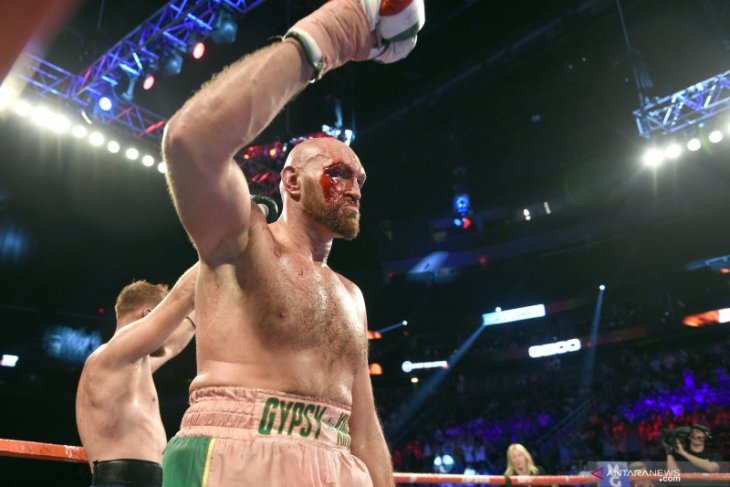 Meski dapat 40 jahitan, Tyson Fury siap 'perang' dengan Wilder
