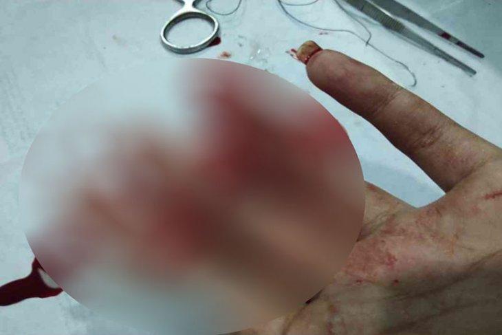 Sadis, kawanan begal di Bekasi bacok tangan korbannya hingga nyaris putus