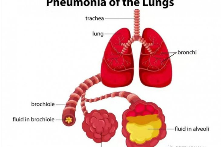 China peringatkan warganya di Kazakhstan  tentang pneumonia mematikan