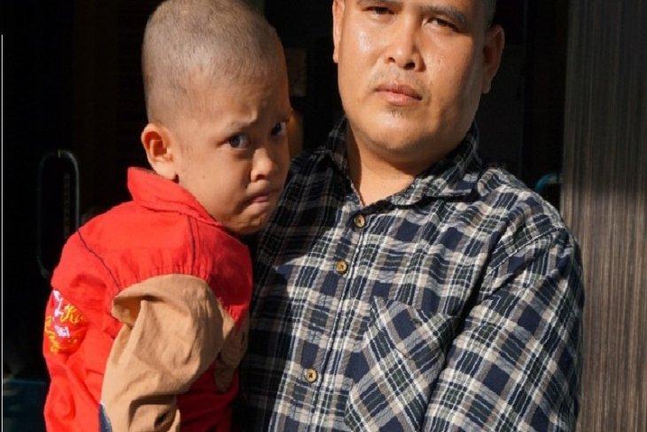Bocah asal Tanjabtim menderita penyakit kulit kayu