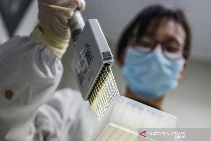 China siap jadikan vaksin COVID-19 sebagai