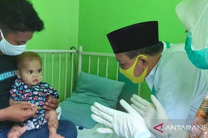 Bupati santuni pasien balita alami kelainan kulit