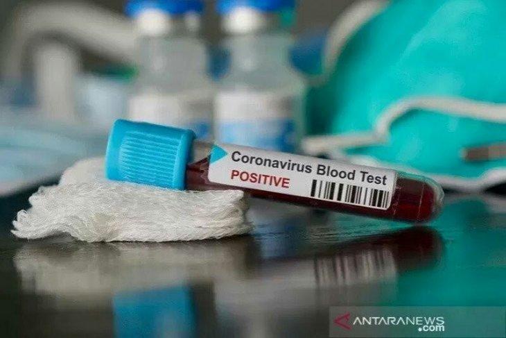 14 Oktober, pasien sembuh COVID-19 di Tapanuli Selatan bertambah
