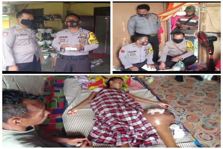 Ikaba Polri Angkatan 23 Polres Langkat bantu penderita tumor ganas