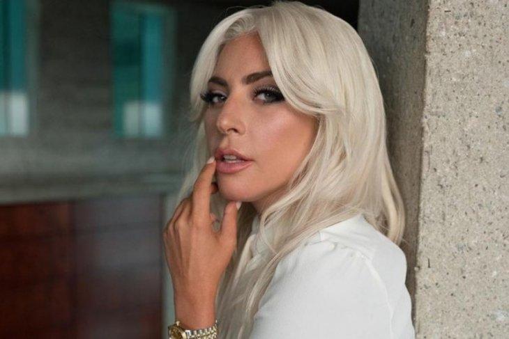 Kehilangan anjing, Lady Gaga beri Rp7 miliar untuk yang menemukan