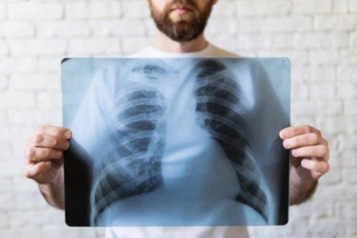 Lima cara terhindar dari tuberkolosis