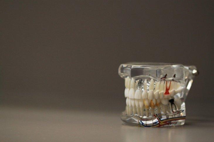 Pola makan hingga penyakit yang menyebabkan gigi menjadi sensitif