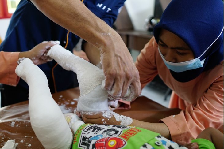 Ratusan anak di Lombok terlahir kaki pengkor