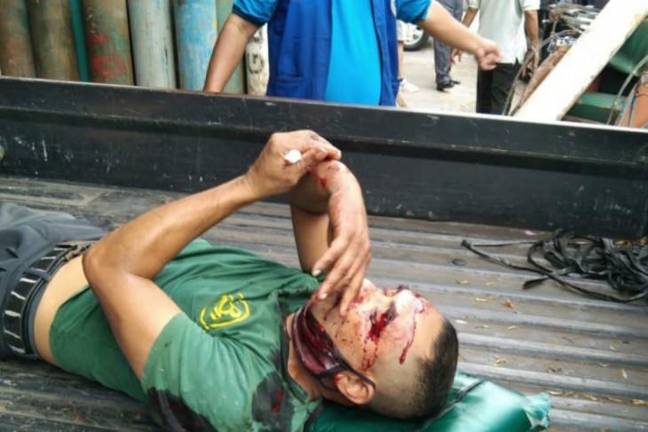 Seorang pekerja luka berat saat tabung oksigen meledak