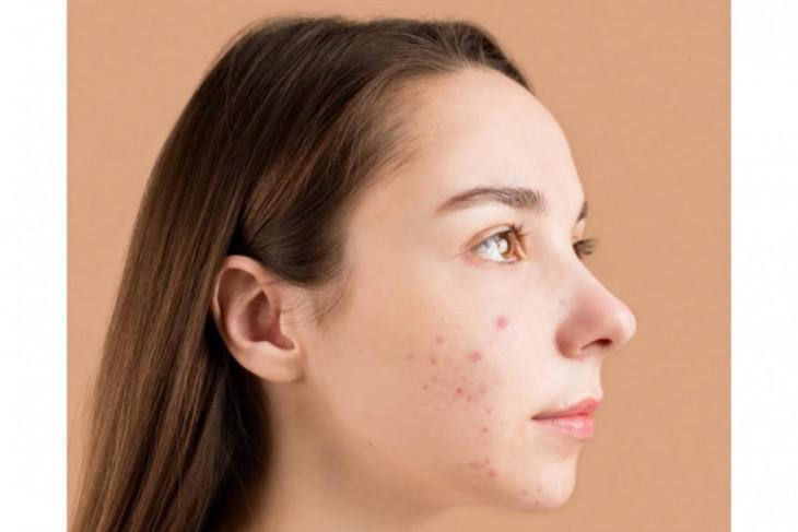 Dokter ajak masyarakat kenali tanda ketidakcocokan perawatan wajah
