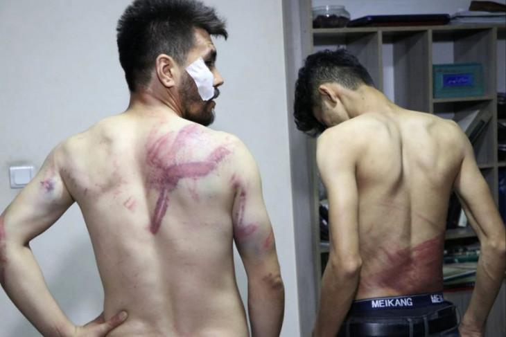 Wartawan Afghanistan dipukuli dalam tahanan Taliban