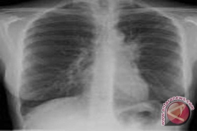 Obat pelangsing dapat menyebabkan hipertensi paru