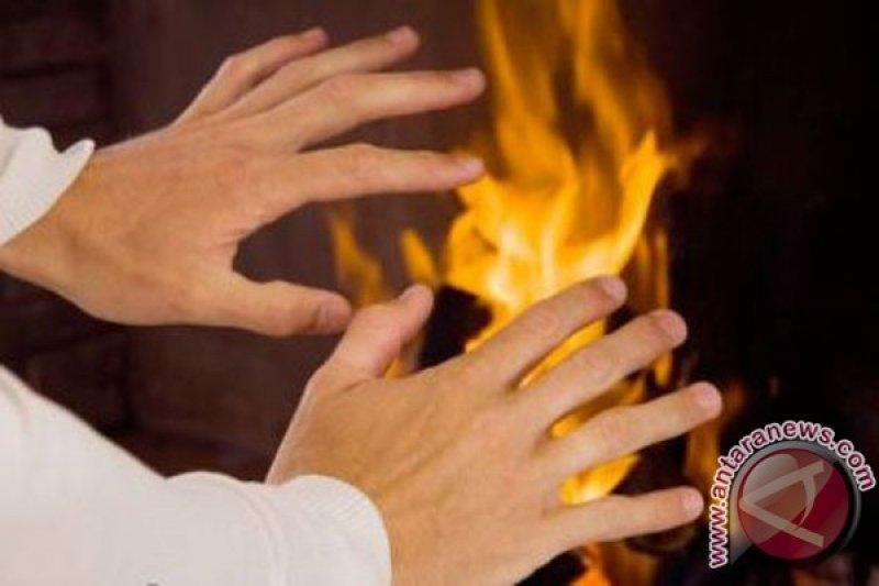 Seorang PNS nekat bunuh diri dengan cara membakar diri