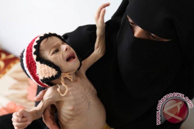 PBB ancam tutup 22 bantuan penyelamatan hidup di Yaman