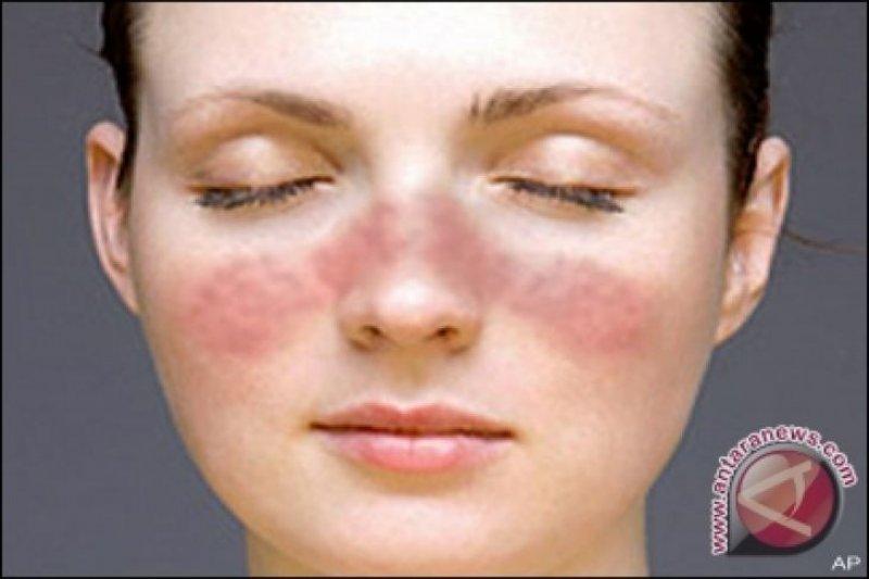 Lupus sulit didiagnosis tetapi bisa dideteksi lewat SALURI