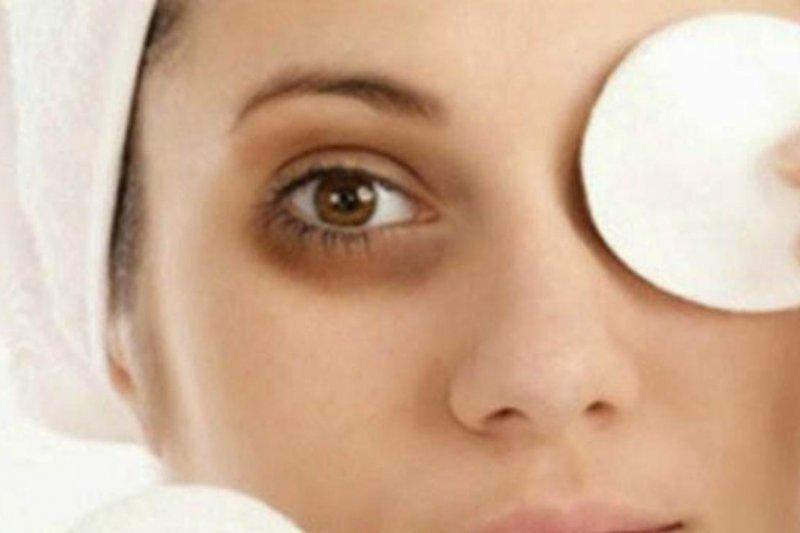 Hilangkan lingkaran hitam di bawah mata dengan cara ini