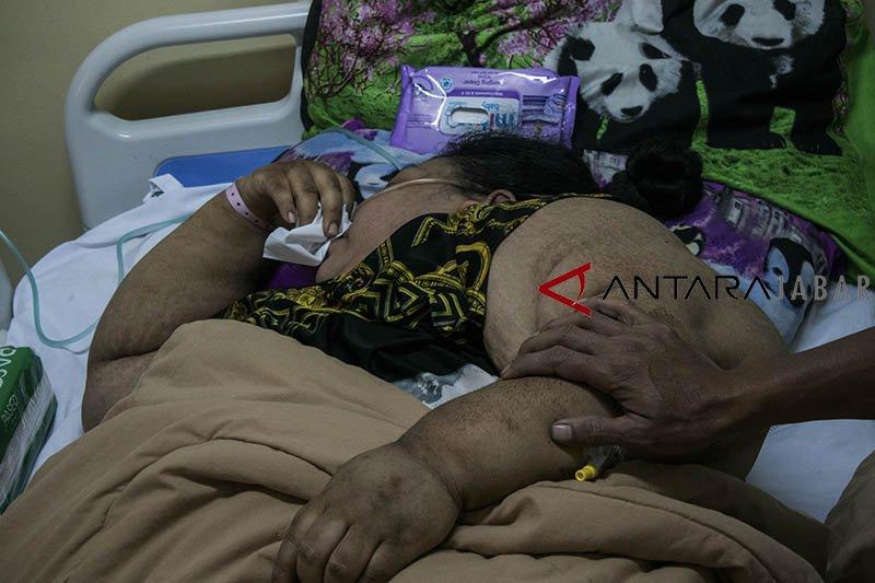 Sunarti, pasien obesitas asal Karawang meninggal dunia