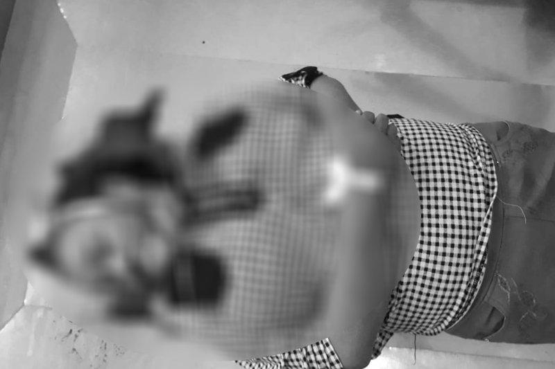 Seorang ibu di Palangka Raya tewas usai menabrak jalan berlubang