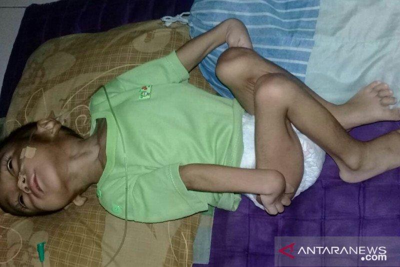 Balita penderita meginitis dan TBC butuh bantuan pengobatan