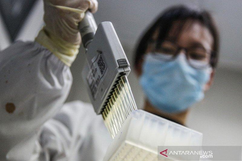 Vaksin COVID-19 buatan Sinopharm dihargai kurang dari Rp2,1 juta per paket