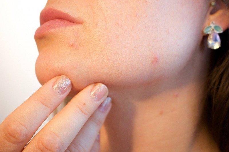 Tips agar kulit tak berjerawat selama gunakan masker