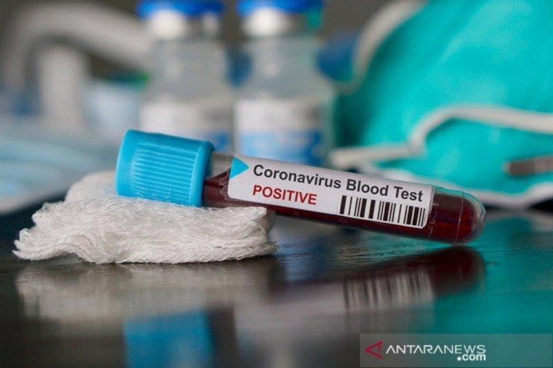 Peneliti Indonesia siap luncurkan alat uji cepat COVID-19