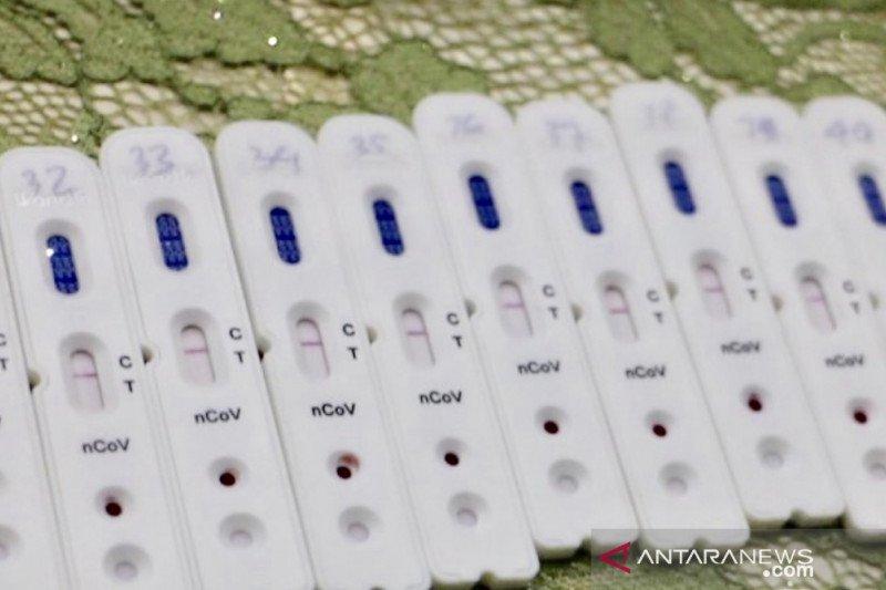 110 orang perawat di Jatim terinfeksi virus corona