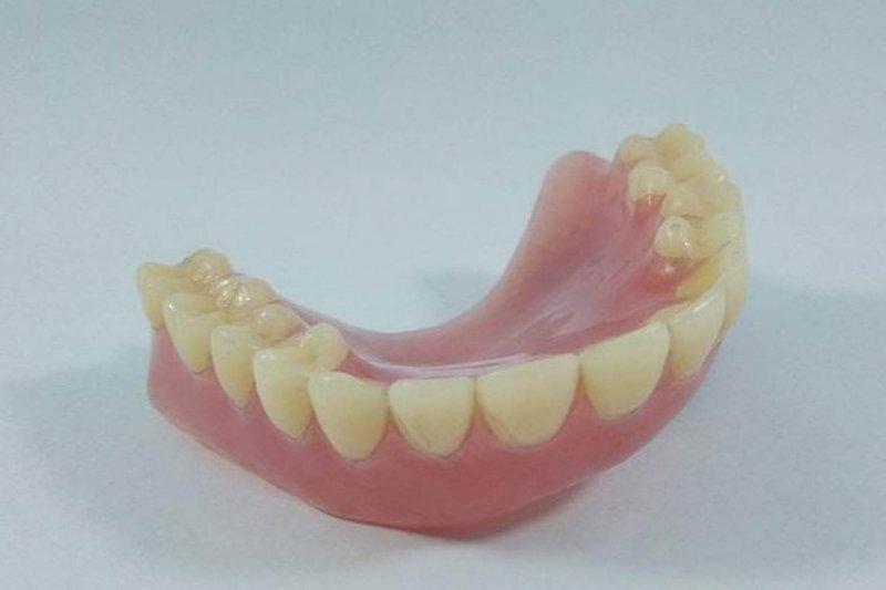Ini dia tips cara merawat gigi palsu agar awet dan sehat, menurut Dokter gigi
