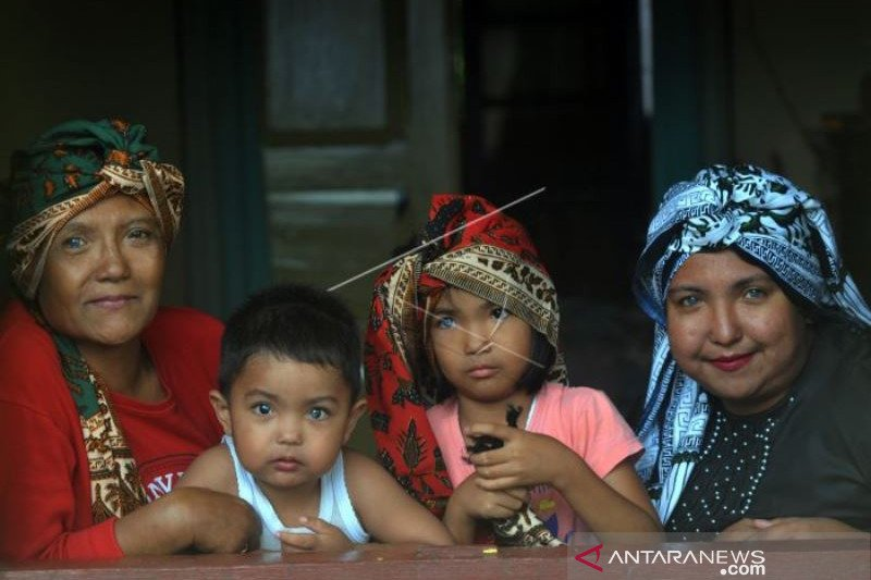 Keluarga Dengan Sindrom Waardenburg di Nagari Sungayang