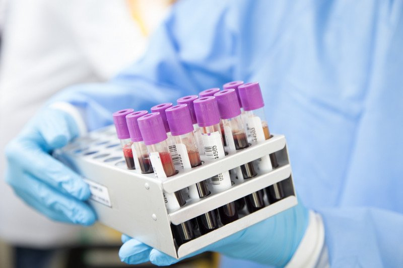 Donor plasma dinilai kurang efektif obati COVID-19