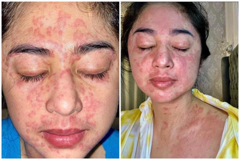 Terinfeksi COVID-19, kulit Dewi Persik ruam kemerahan