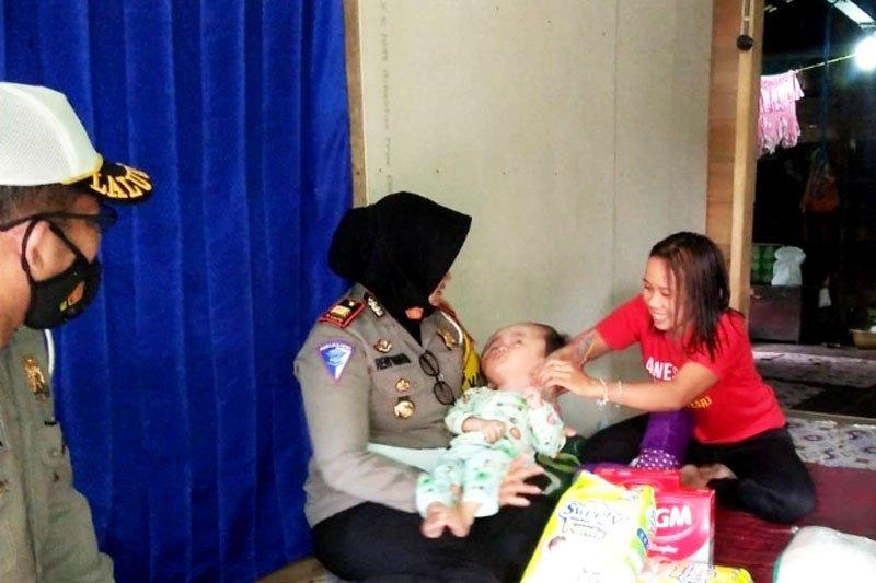 Polres Barut serahkan bantuan untuk anak penderita hidrosefalus