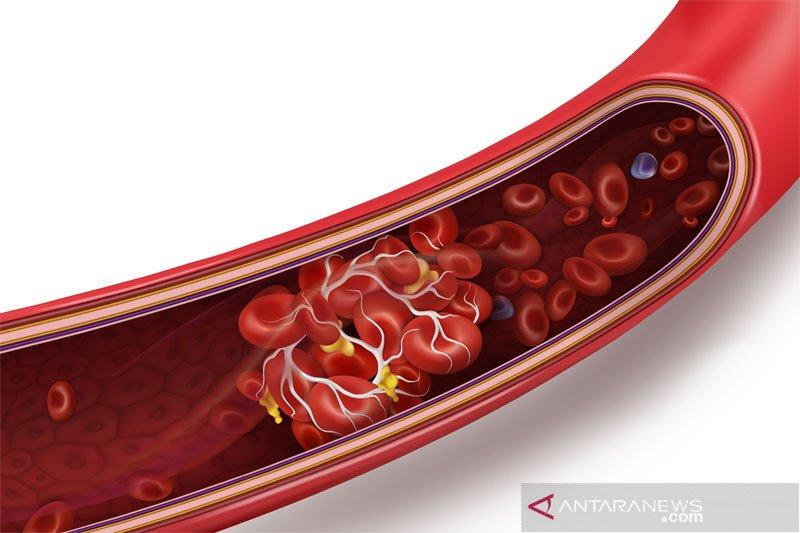 Riset Denmark, Norwegia sebut sedikit pembekuan darah setelah suntik Astra