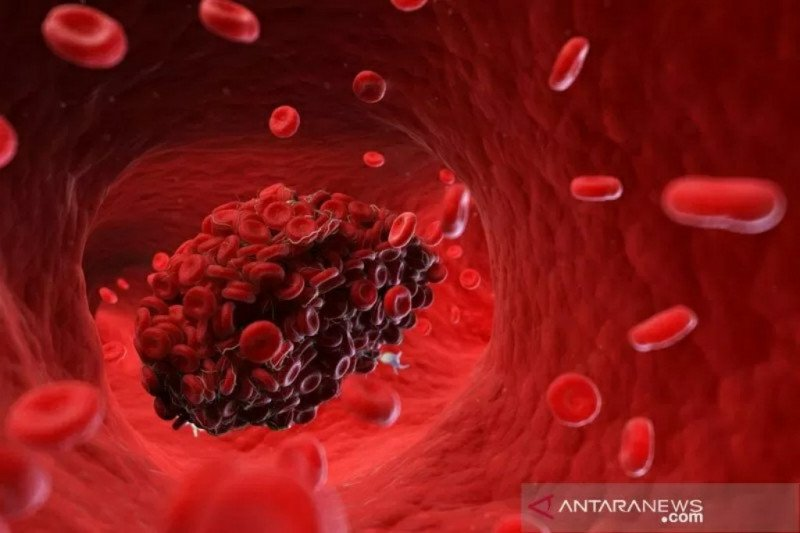 Pentingnya memahami pembekuan darah akibat COVID-19